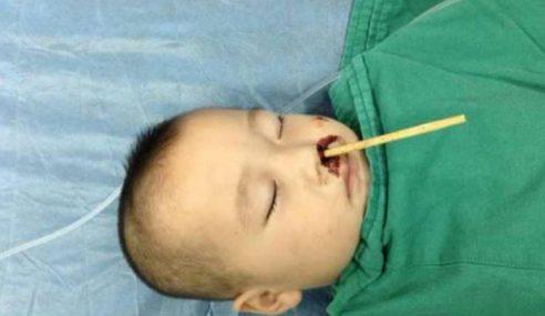 Budak Parah Otak Tertusuk Penyepit Makanan