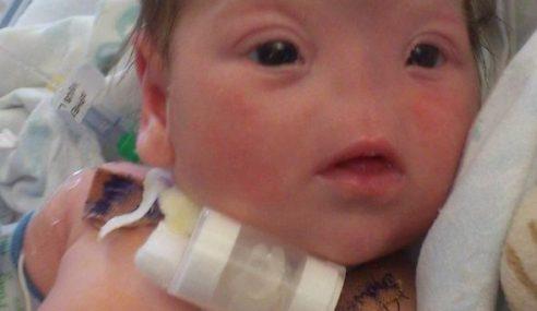 Bayi Perempuan 17 Bulan Tanpa Hidung