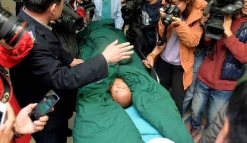 Doktor Keluarkan 12 Jarum Daripada Tubuh Bayi Di China