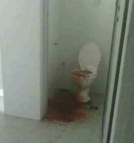 4 GAMBAR: Tragis! Wanita Hamil Maut Lepas Muntah Darah Di Muar