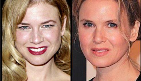 Jalani Pembedahan Kosmetik, Muka Renee Berubah Habis!