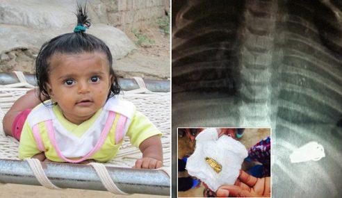 Bayi 6 Bulan Tertelan Pisau Lipat Di India
