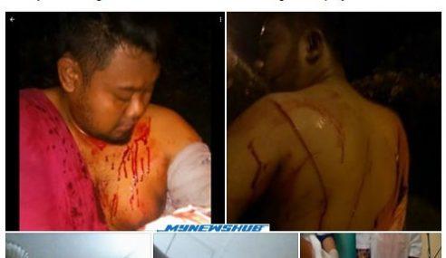Lelaki Diserang 13 Samseng Jalanraya Di Puncak Perdana