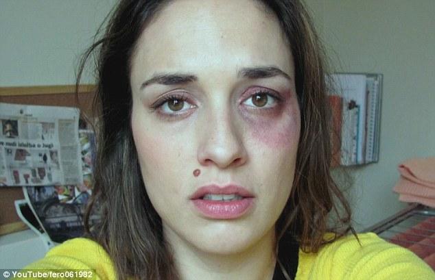VIDEO: Ini Jadinya Bila Wanita Dibelasah Teruk Selama Setahun..