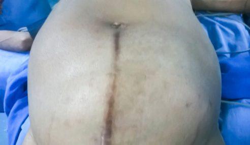 Tumor Seberat Budak 4 Tahun Dibuang Dari Dalam Perut