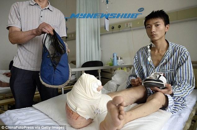 Remaja Derita Kaki Membesar Di China