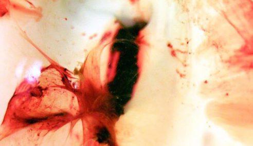 Wanita Jadikan Darah Haid Sendiri Sebagai Karya Seni Foto