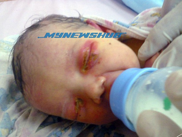 Bayi Nyaris Maut, Dibuang Dalam Hutan & Dihurung Semut