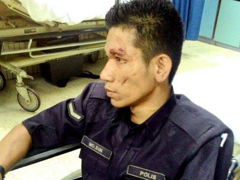 Anggota Polis Cedera Dirempuh Lelaki Cuba Lari Dari Pemeriksaan Polis