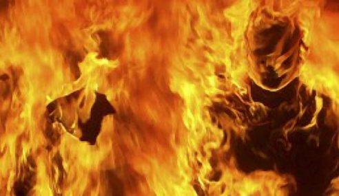 Lelaki Melecur Separuh Badan Dipercayai Dibakar Dalam Tandas