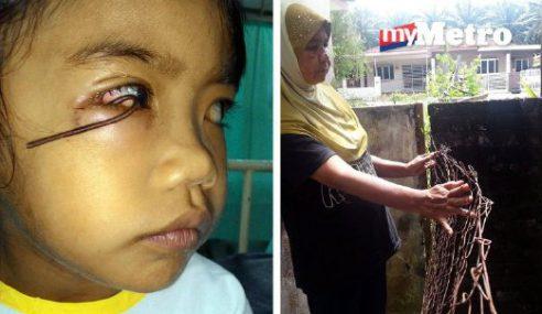 Kelopak Mata Budak 5 Tahun Tersangkut Di Pagar Karat