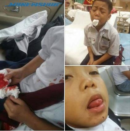 KPM Serah Kes Gunting Lidah Kepada Polis Untuk Tindakan