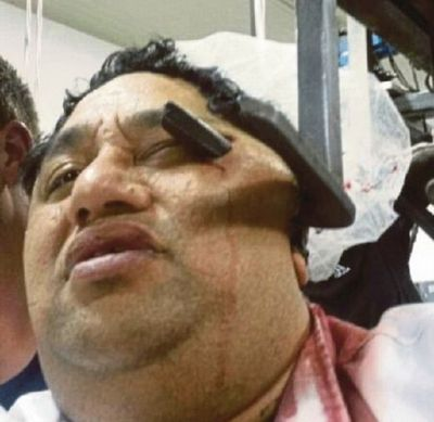 Lelaki Ditusuk Pencangkuk Daging Terima Pampasan
