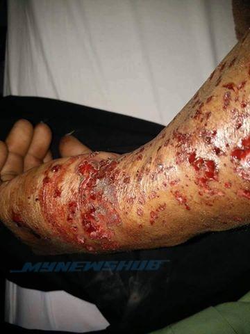 Lelaki Cedera, Telefon Bimbit Sedang Dicas Meletup Di Kedah