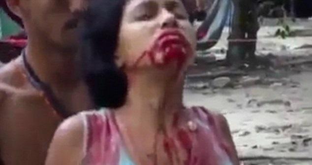 Video Wanita Dirasuk, Muntah Darah Jadi Viral