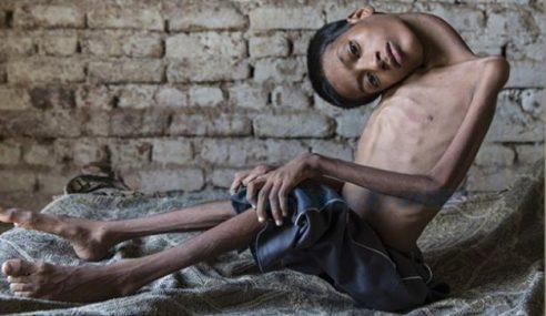 Kisah Sedih Mahendra, Lihat Dunia Secara Terbalik
