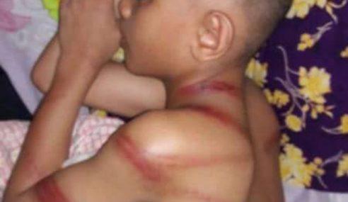 Pukul Budak Sampai Berbirat, Ustaz Tahfiz Ditahan