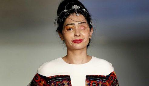 Mangsa Simbah Asid Gegarkan Minggu Fesyen New York