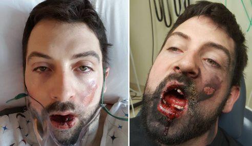 Vape Meletup, Lelaki Ini Hilang 7 Gigi, Muka Melecur