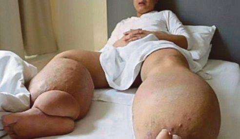 Lelaki Miliki Kaki Seberat 150 Kilogram