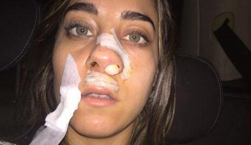 Model Janji Oral Seks Kena Gigit Anjing Di Muka