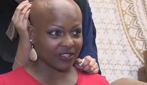 Botak Akibat Penyakit, Wanita Ini Hias Dengan Inai