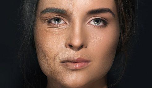 Proses Penuaan, Kulit Kusam & 5 Cara Mencegahnya