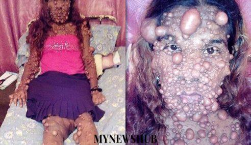 Wanita Tabah Ditumbuhi Ribuan Gelembung Tumor