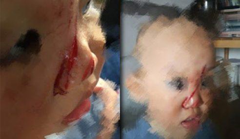 Bayi Cedera Di Muka Terkena Bilah Dron