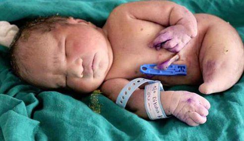 Bayi `Duyung' Hanya Sempat Lihat Dunia 15 Minit