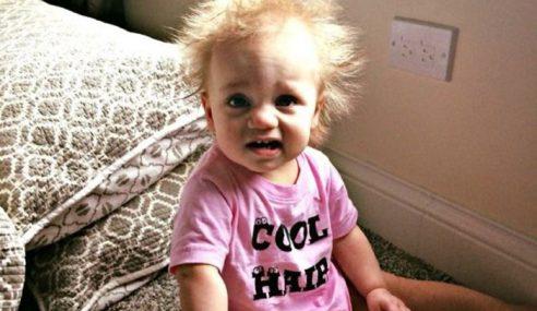 Bayi Hidap Sindrom Rambut Cacak Macam Einstein