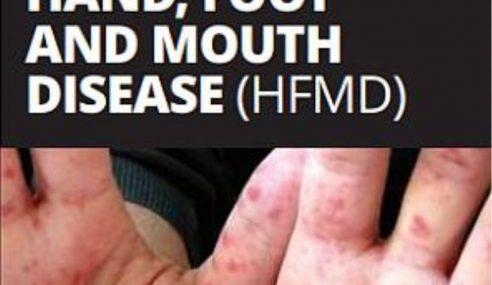 HFMD: 4 Sekolah, Prasekolah & Tadika Masih Ditutup