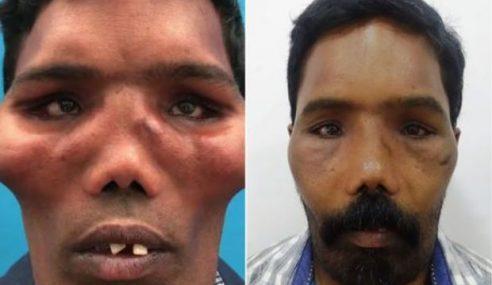 Sindrom 'Muka Singa', Doktor Berjaya Ubah Wajah Lelaki Ini Jadi Normal