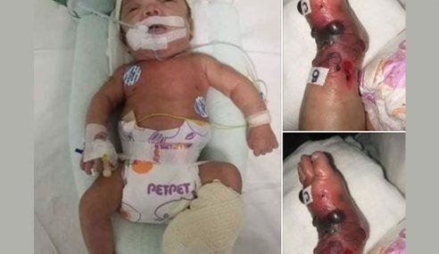 Kaki Kiri Bayi Lelaki Bengkak Selepas Pembedahan
